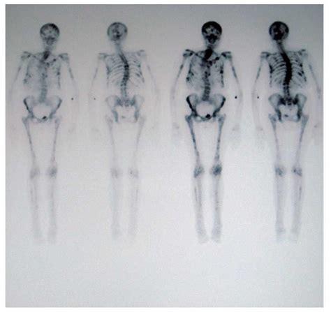 Metástasis óseas de cáncer de mama. Latencia durante 18 ...
