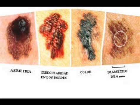Mi video de cancer de piel   YouTube