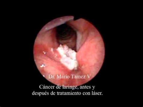 Microcirugía Láser para el Tratamiento de Cáncer de ...