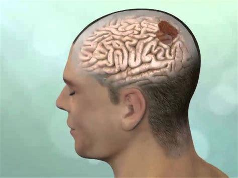 Mitos acerca de los tumores cerebrales   Gamma Knife