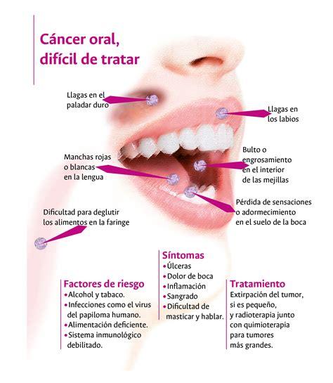 Molécula de calostro de vaca ataca el cáncer oral