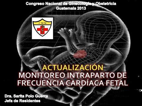 Monitoreo Intraparto FCF actualizacion 2013