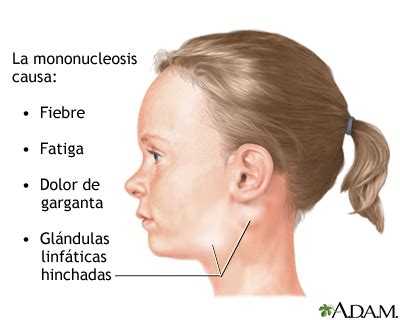 Mononucleosis infecciosa: MedlinePlus enciclopedia médica ...
