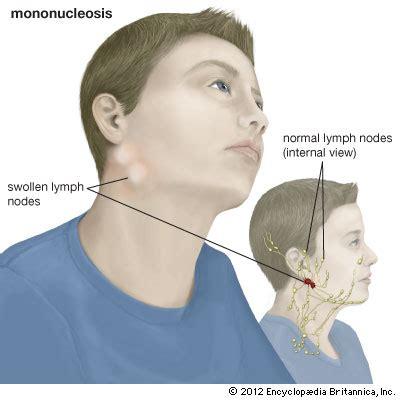 mononucleosis   Kids | Britannica Kids | Homework Help