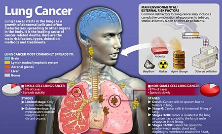 Most Common Types Of Cancers In The World 2016   Bewitter.com