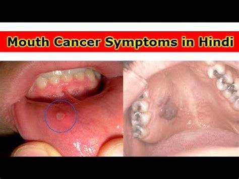 Mouth Cancer Symptoms and Treatment: जानिए ओरल कैंसर से ...
