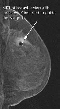MRI for breast cancer screening in women with high risk of ...