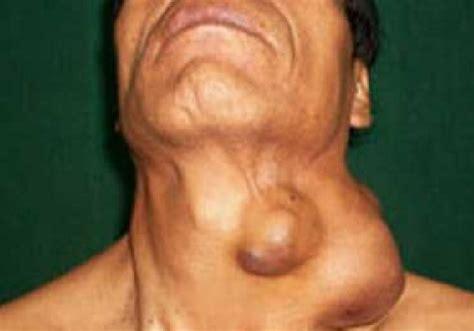 Muchos pacientes con linfoma no Hodgkin pueden evitar la ...