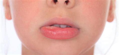 Mucocele: ¿qué es y cómo se cura? | Clínica Dental Ferrus ...