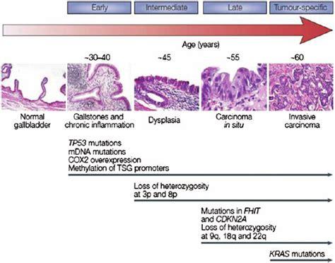 Multi step pathogenesis of gallbladder cancer from ...