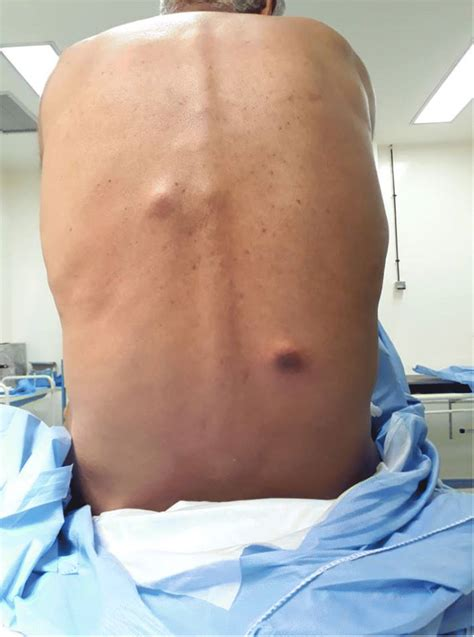 Multiple cutaneous metastasis of synchronous urothelial ...