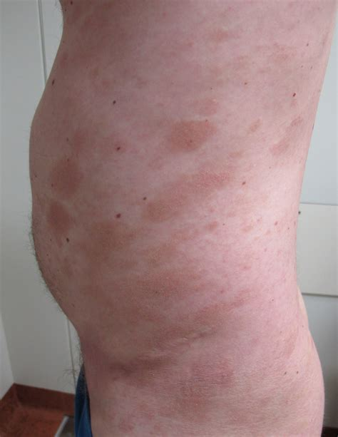 Mycosis Fungoides   ACD