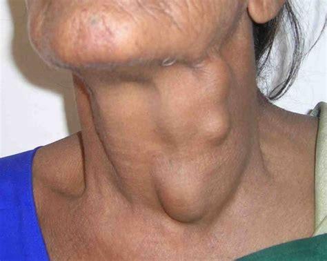 Neck cancer symptoms   InfoBarrel