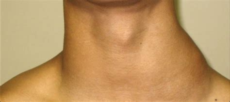 Neck Swelling ENT Conditions and Tratment from Subang ENT ...