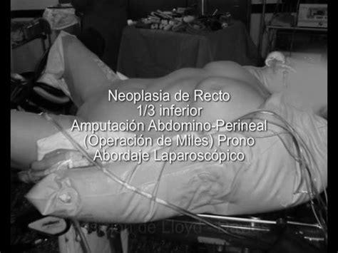 Neoplasia de Recto tercio inferior. Operación de Miles ...