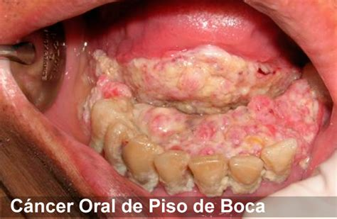 Neoplasias de la Boca; Cáncer de Boca; Cáncer Oral ...