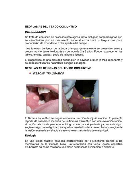 Neoplasias del tejido conjuntivo y tumores odontogénicos ...