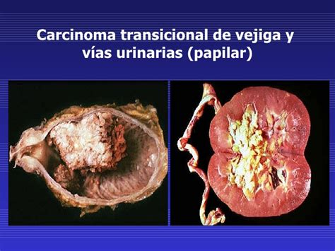 Neoplasias malignas 1