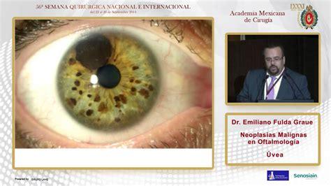 Neoplasias Malignas en Oftalmología, Úvea, Dr. Emiliano ...