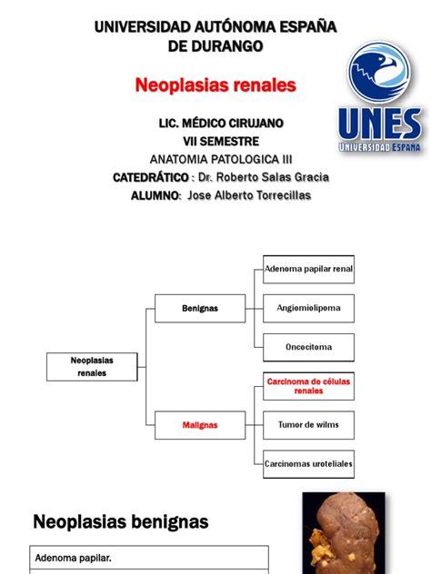 Neoplasias renales, patologías de vejiga y próstata ...