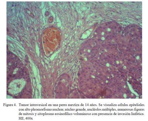 Neoplasias Uretrales; Cáncer de Uretra; Cáncer Uretral
