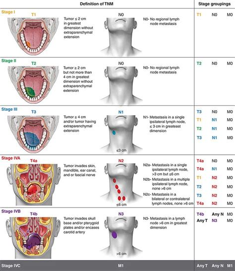 Neoplasms of the Lung   Basicmedical Key