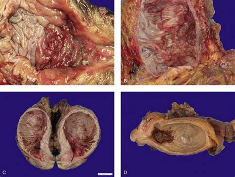 Neoplasms of the urinary bladder | Abdominal Key