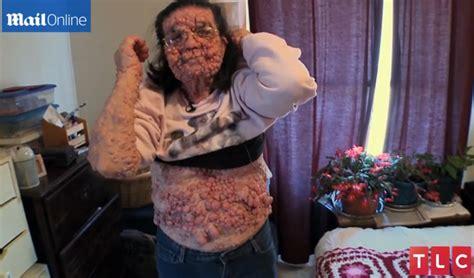 Neurofibromatosis Type 1 Leaves Grandma With  Bubble ...