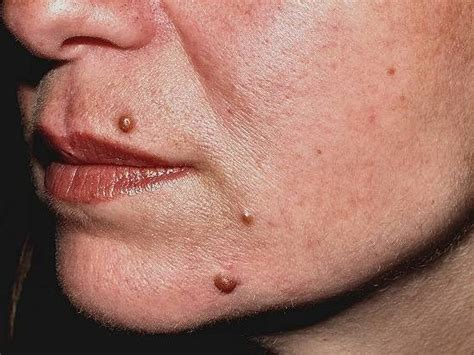 Nevus, verrugas, lesiones dermicas benignas   Tratamientos ...