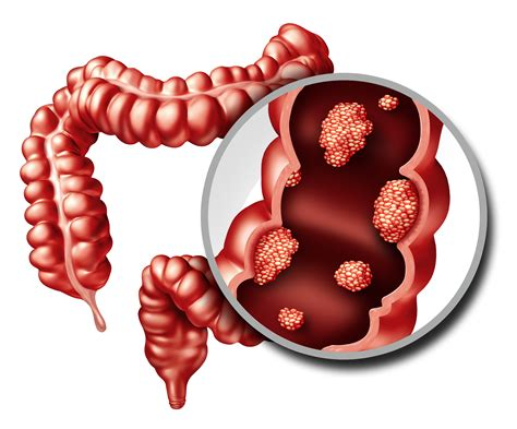 New Colorectal Cancer Biomarker Could Be Lipid Producing ...