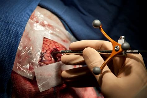 New probe accurately detects cancer during surgery: A ...