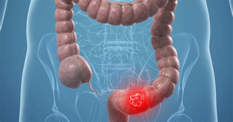 New Stem Cell Population Important In Colon Cancer ...