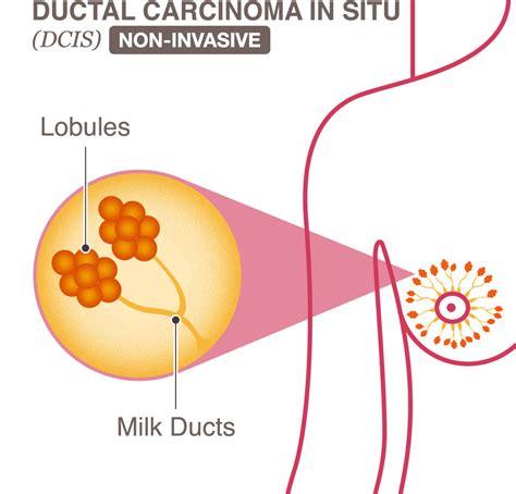 New Technique Identifies Ductal Carcinoma In Situ, Breast ...