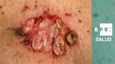 No quieras tener carcinoma basocelular o espinocelular ...