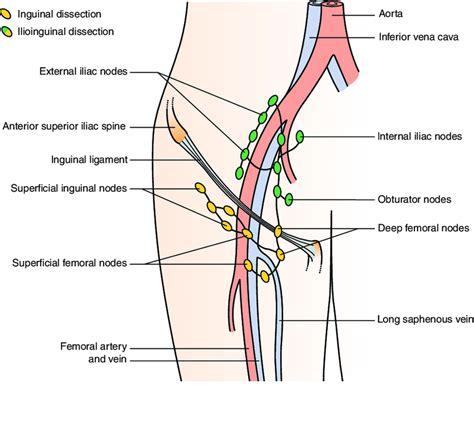 Nodes removed in inguinal versus ilioinguinal completion ...