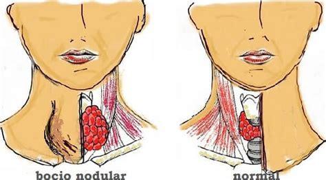 Nódulos Tiroideos: Síntomas de Nódulos en Tiroides | TuChequeo