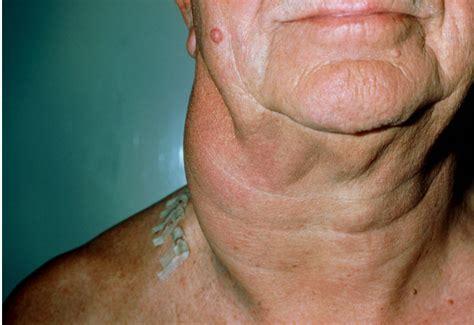 Non Hodgkin Lymphoma   Ask Hematologist   Understand ...