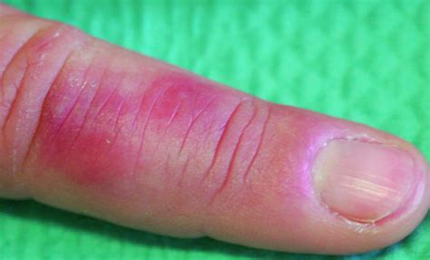 Nonfreezing Tissue Injuries   Injuries and Poisoning   MSD ...