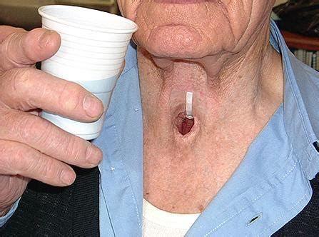 Novo tratamento do câncer da garganta   Artigos sobre saúde