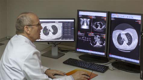 Nuevo estudio que podría diagnosticar el Cáncer de Pulmón ...
