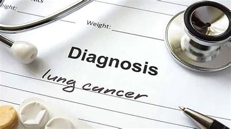 Nuevo test para detectar el cáncer de pulmón en una fase ...