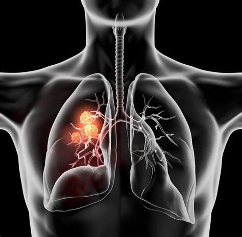 Nuevo tratamiento para cáncer de pulmón en México