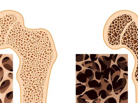Nuevo tratamiento para el cáncer de hueso   Info   Taringa!