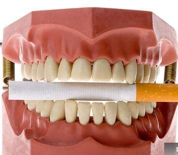 O câncer de boca ~ Sintomas Causas e Curas