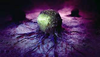 O que é um carcinoma?   MD.Saúde