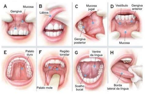 Odonto Family   Notícia   Câncer bucal