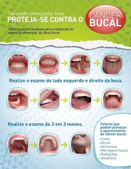 ODONTOLOGIA POR AMOR!: Autoexame de Câncer de Boca