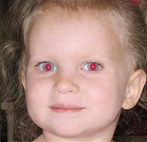Ojos blancos y ojos rojos en las fotos   Todo Opticas