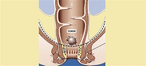 Operacion de cancer de recto, reseccion