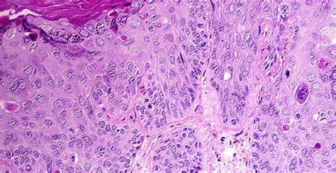 Opiniones de Carcinoma epidermoide pulmonar